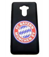 Grosir Xiaomi Redmi 4x Bayern Munchen Silicon Black Matte Murah
